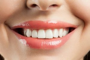 "Cosmetic dentist in Texarkana offers ZOOM! Whitening."">"